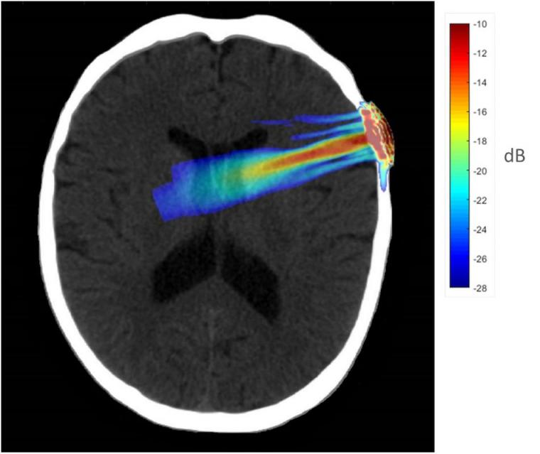 Acoustic simulation model on a representative CT scan